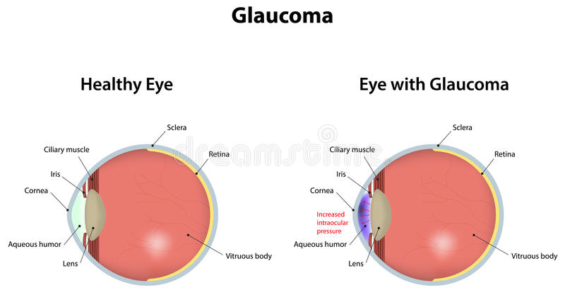 glaucoma vektor illustrationer