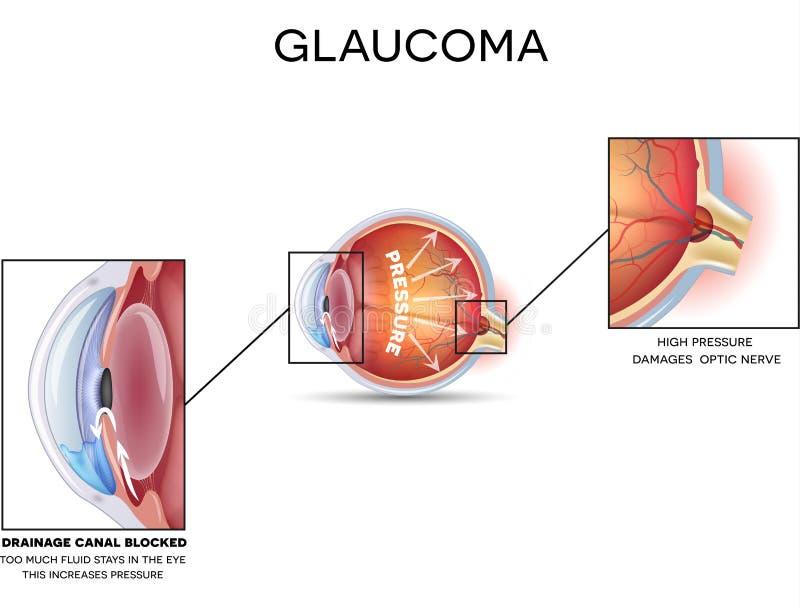 glaucoma royaltyfri illustrationer