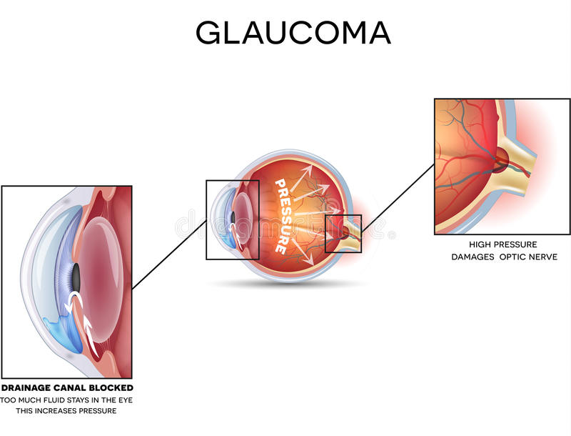 Glaucoma royalty free illustration