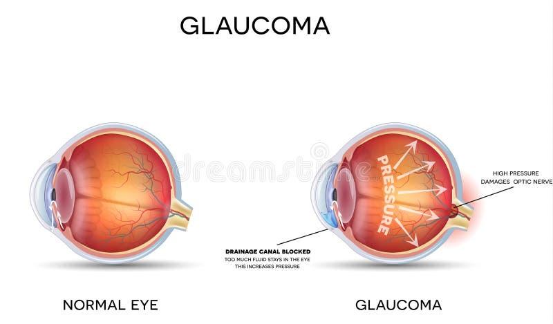Glaucoma vector illustration