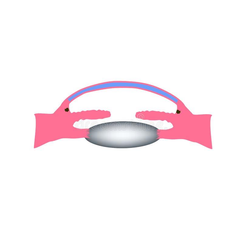 glaucoma do Aberto-ângulo Um tipo comum de glaucoma A estrutura anatômica do olho Infographics Ilustração do vetor ilustração stock