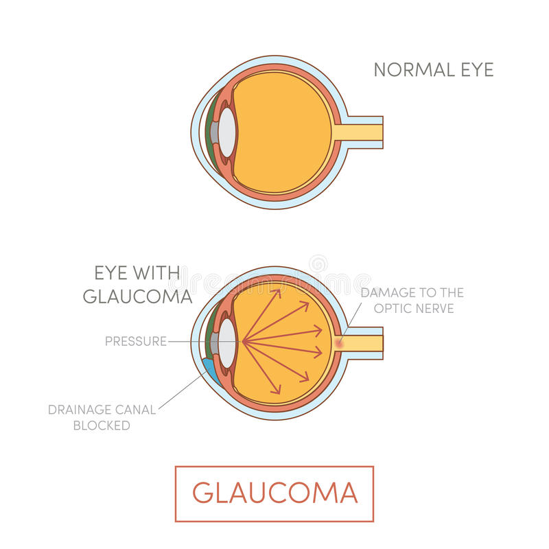 Glaucoma eye,. Human eye disorder stock illustration