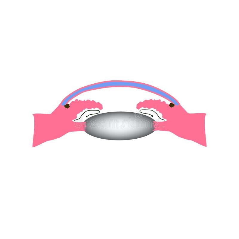 Glaucoma fechado do ângulo Um tipo comum de glaucoma A estrutura anatômica do olho Infographics Ilustração do vetor ilustração stock
