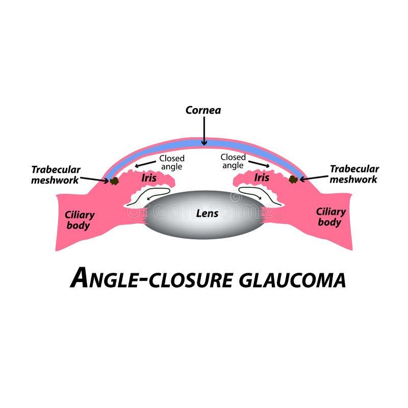 Glaucoma fechado do ?ngulo Um tipo comum de glaucoma A estrutura anat?mica do olho Infographics Ilustra??o do vetor ilustração stock
