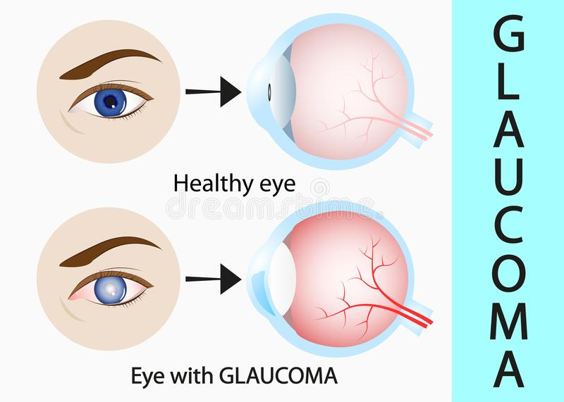 Glaucoma and healthy eye detailed structure. royalty free illustration