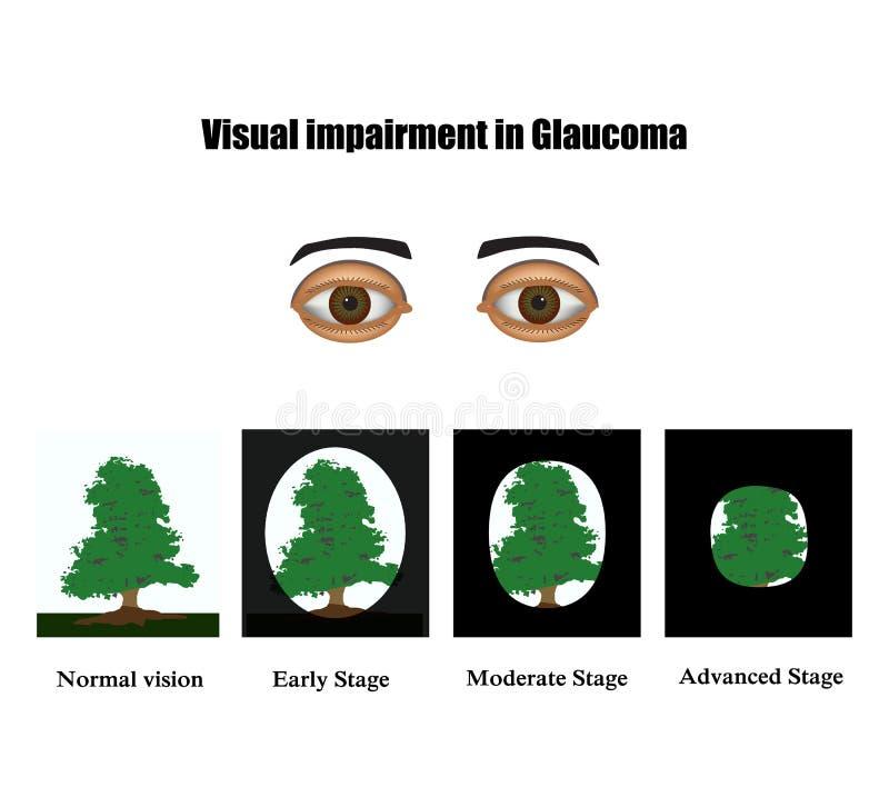 glaucoma Il campo di visibilità nel glaucoma Infographics Illustrazione di vettore su fondo illustrazione di stock