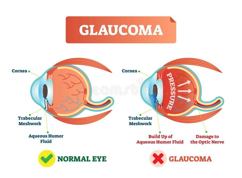 Vector illustration of glaucom. Cross section with damaged eye. Scheme with cornea, trabecular meshwork and aqueous humor fluid. Glaucoma illness vector royalty free illustration