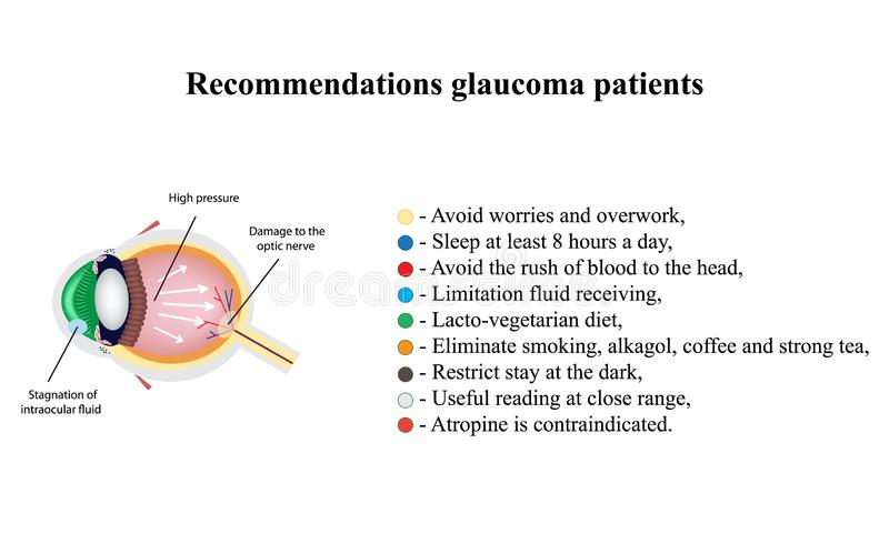 Glaucoma. Recommendations glaucoma patients. The structure of the eye. Infographics. Vector illustration on isolated. Background royalty free illustration