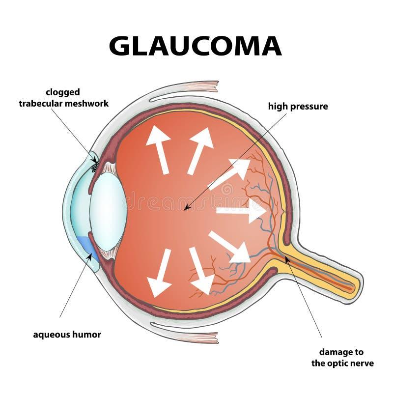 Glaucoma. Stock illustration. Human eye with Disease glaucoma. Stock Vector illustration stock illustration