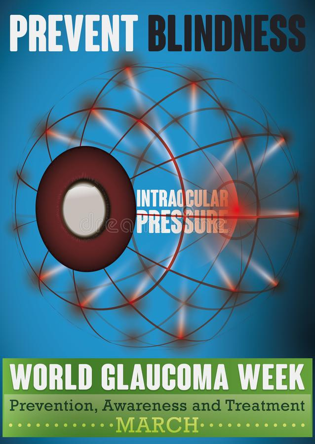 Glaucoma Week Design with Eye Affected for High Intraocular Pressure, Vector Illustration. World Glaucoma Week design with a eyeball in mesh style affected for vector illustration
