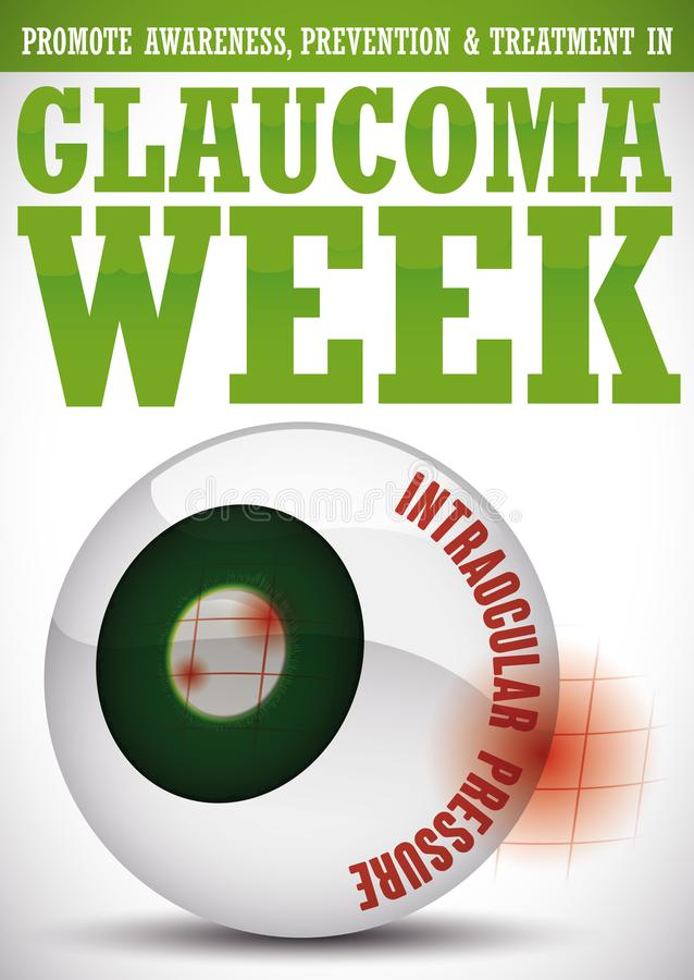 Glaucoma Week Design with Representation of this Sickness in Eyeball, Vector Illustration. Poster for World Glaucoma Week with some precepts and a glossy eyeball stock illustration