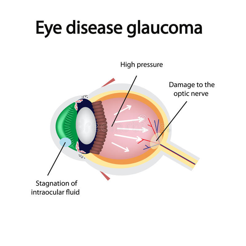 Glaucomatous eye. Violations causing glaucoma stock illustration