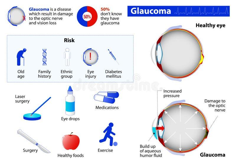 glaucome illustration stock