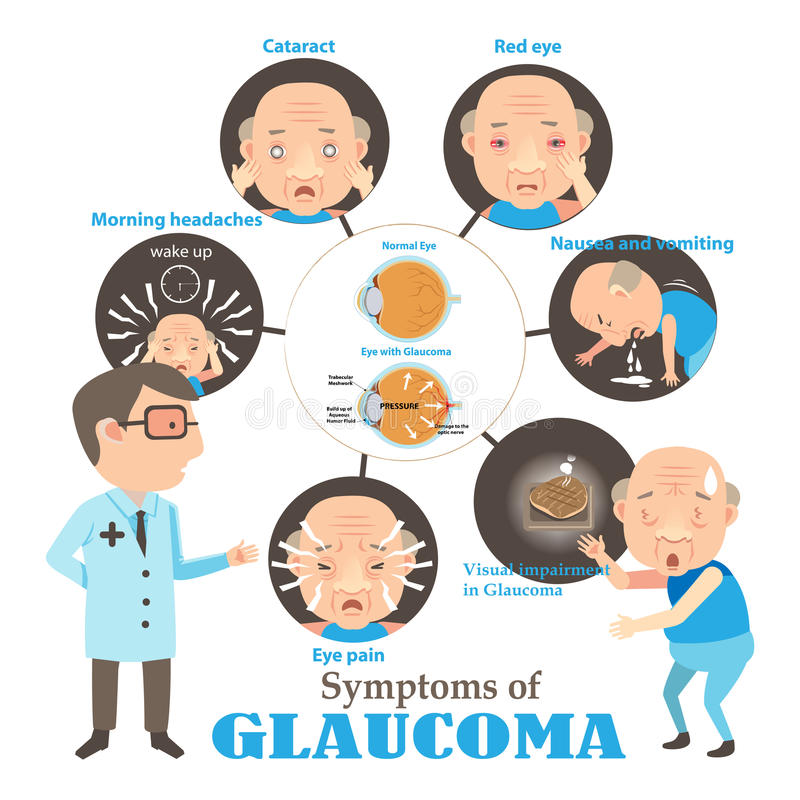glaucome illustration stock
