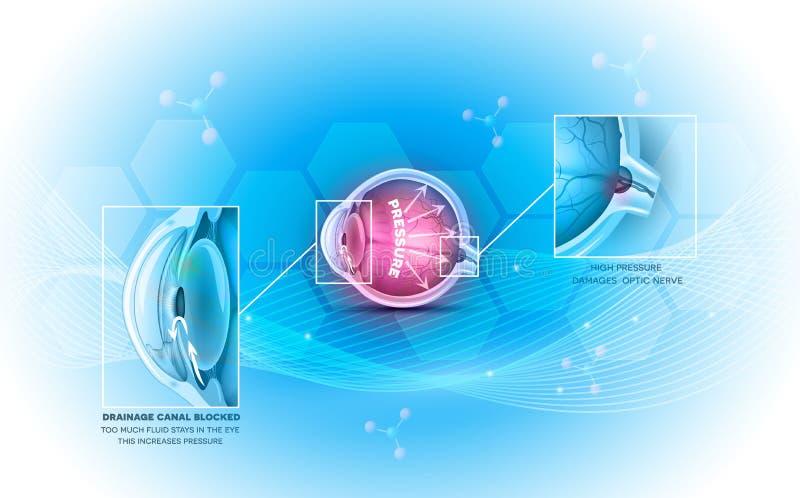 Glaucome la maladie oculaire illustration stock