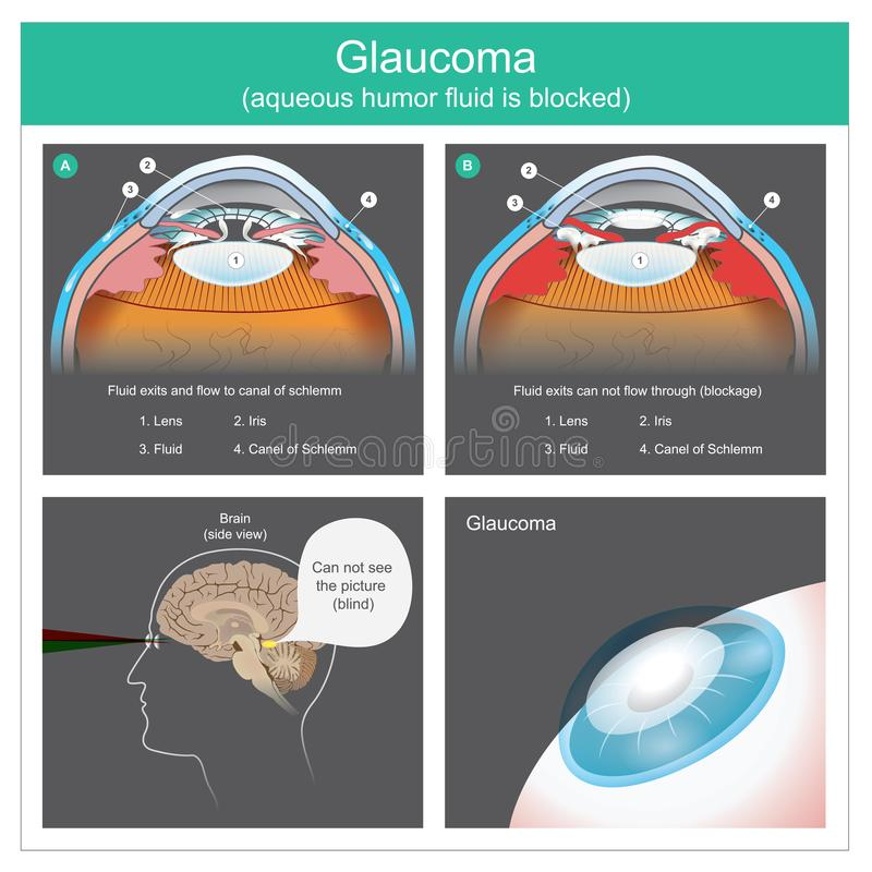 glaucome Sorties liquides et écoulement d'humeur aqueuse au canal des yeux humains de schlemm Illustration illustration libre de droits