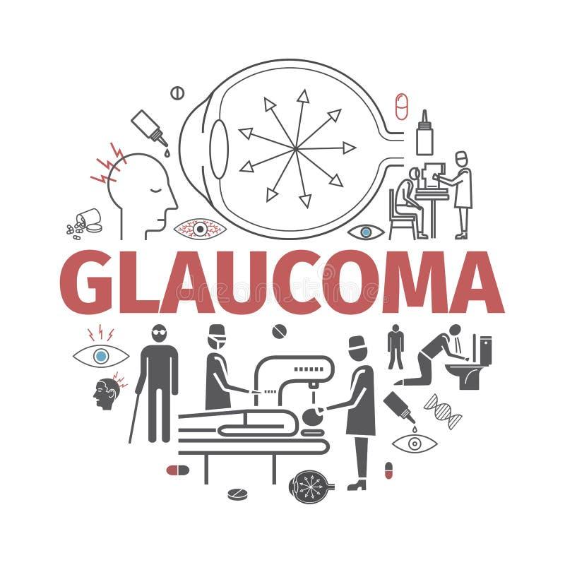 glaucome Symptômes, traitement Ligne icônes réglées Signes de vecteur pour des graphiques de Web illustration libre de droits