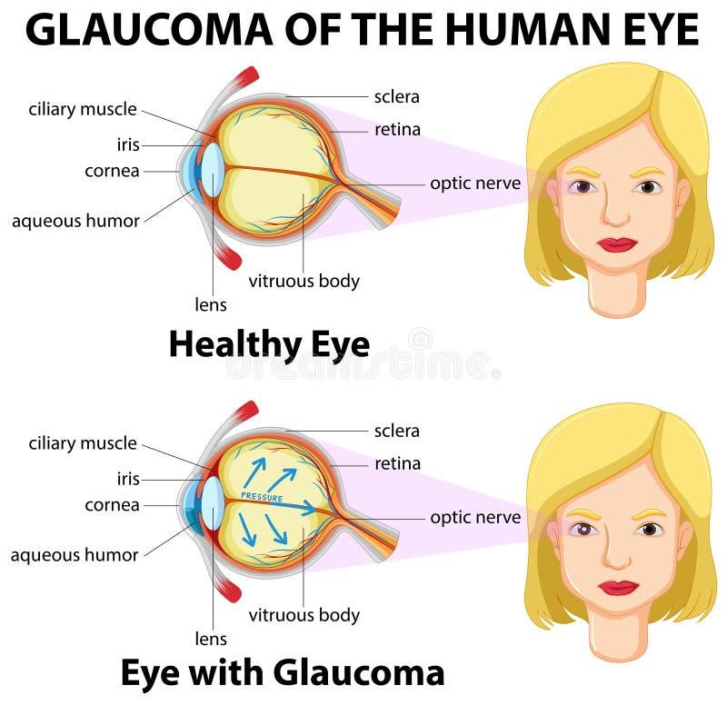 Glaukom av det mänskliga ögat royaltyfri illustrationer