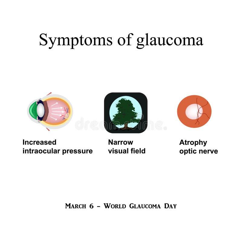 Glaukom Symptome Des Glaukoms Atrophie Des Sehnervs Blickfeld Am ...