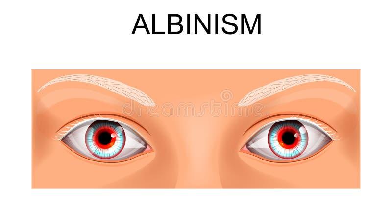 Gli occhi di una persona che soffre dall'albinismo illustrazione vettoriale