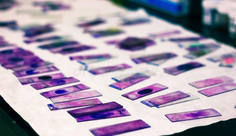 Gli scorrevoli del vetro macchiato dello striscio di sangue periferico con il giemsa viola di leishman macchiano nel laboratorio  immagine stock