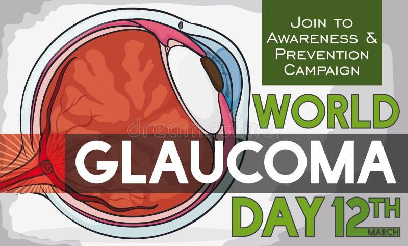 Globe oculaire malade avec la date de rappel pour le jour de glaucome du monde, illustration de vecteur illustration stock