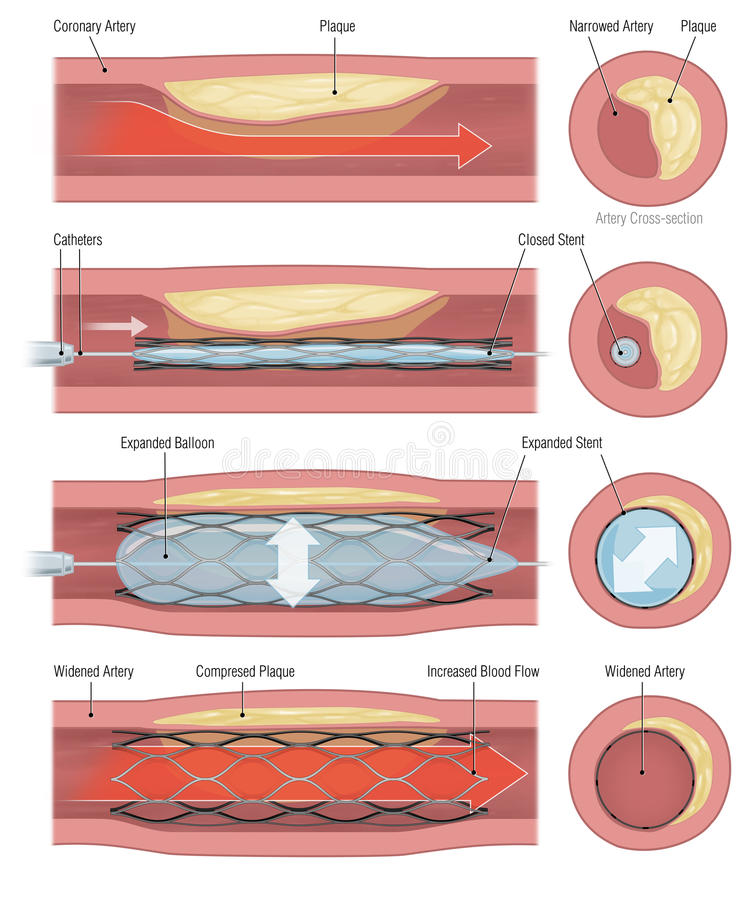 Stent ilustración del vector
