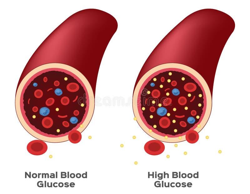 Glucosa En Sangre Stock De Ilustración. Ilustración De