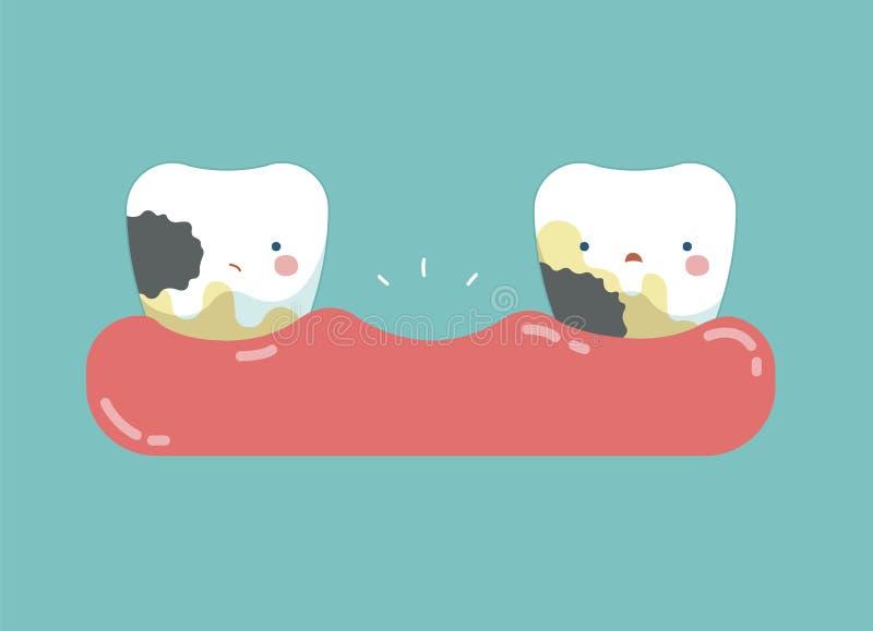 Gnijący zęby, zęby i zębu pojęcie stomatologiczny, ilustracji