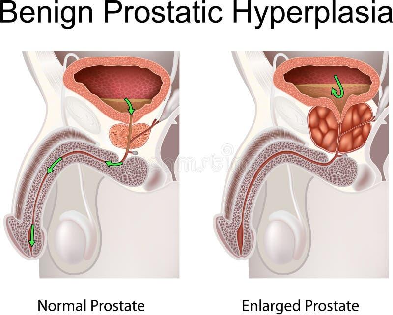 Godartad Prostatic Hyperplasia vektor illustrationer