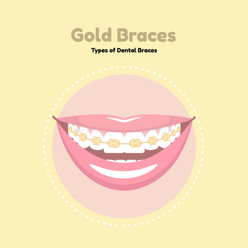 Gold Dental Braces. Types of Dental Braces. Vector flat illustration of smile with braces on the teeth royalty free illustration
