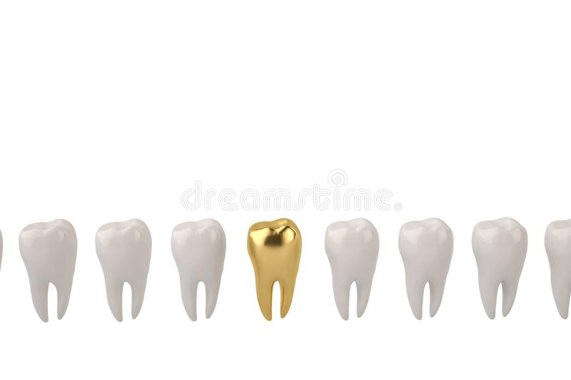 Gold tooth and clean tooth on white background 3D illustration. Gold tooth and clean tooth on white background 3D illustration vector illustration