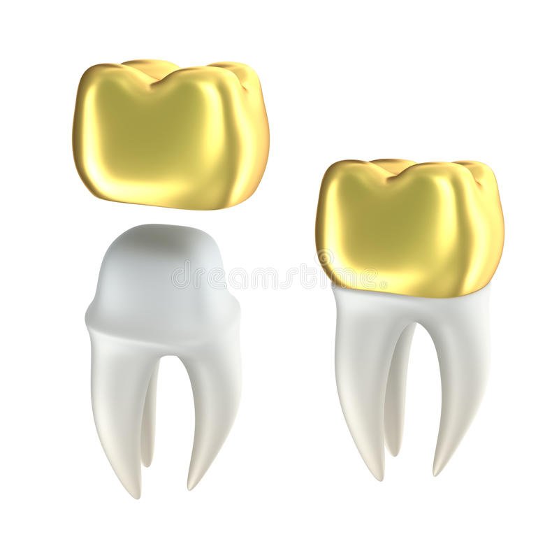 Gold Tooth Clipart | www.pixshark.com - Images Galleries ...