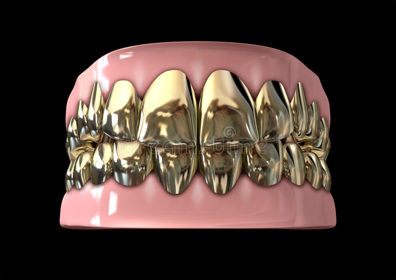 Golden Gangster Teeth And Gums Stock Photo