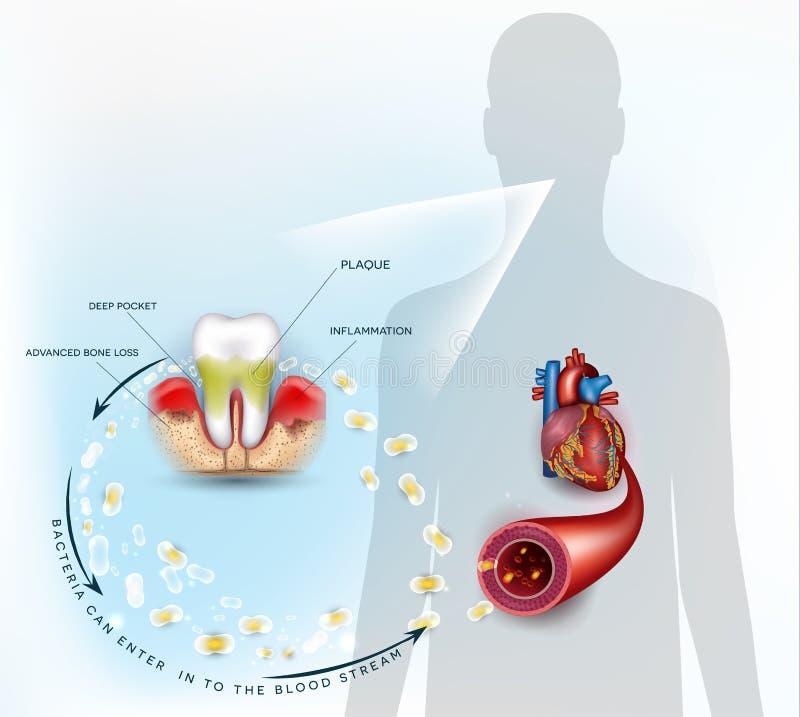 Gommi i batteri di infiammazione di malattia royalty illustrazione gratis