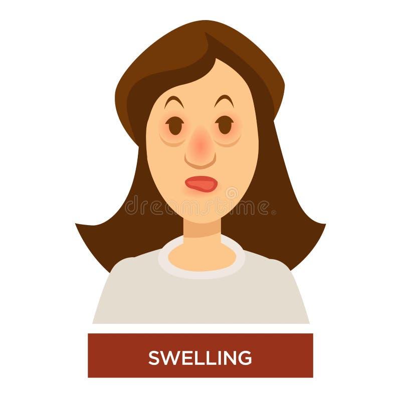 Gonflement des sacs de symptôme d'allergie ou d'angioedema sous des yeux et l'inflammation illustration libre de droits
