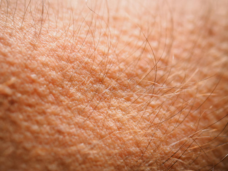 Goose bumps stock image