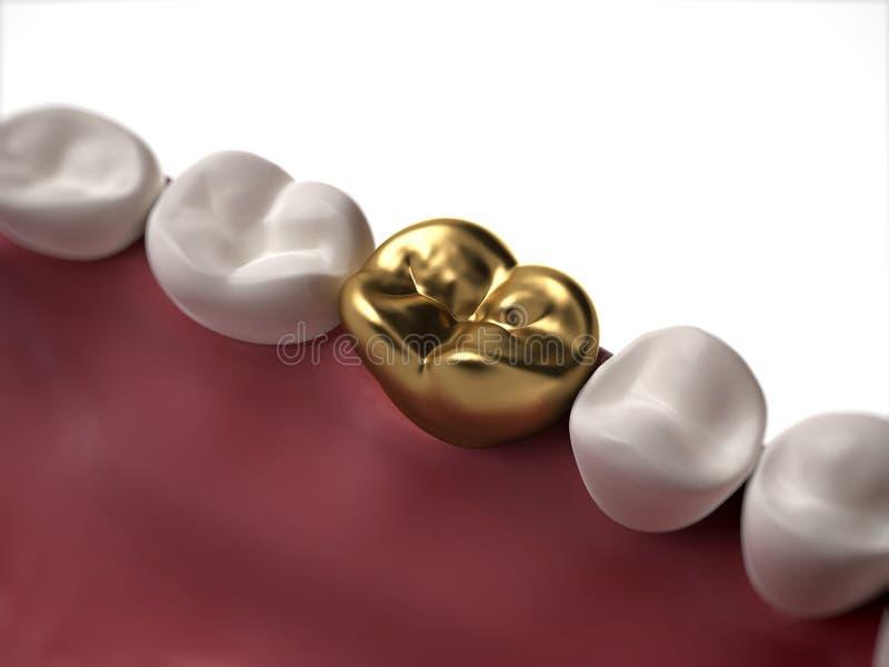 Gouden tand royalty-vrije illustratie