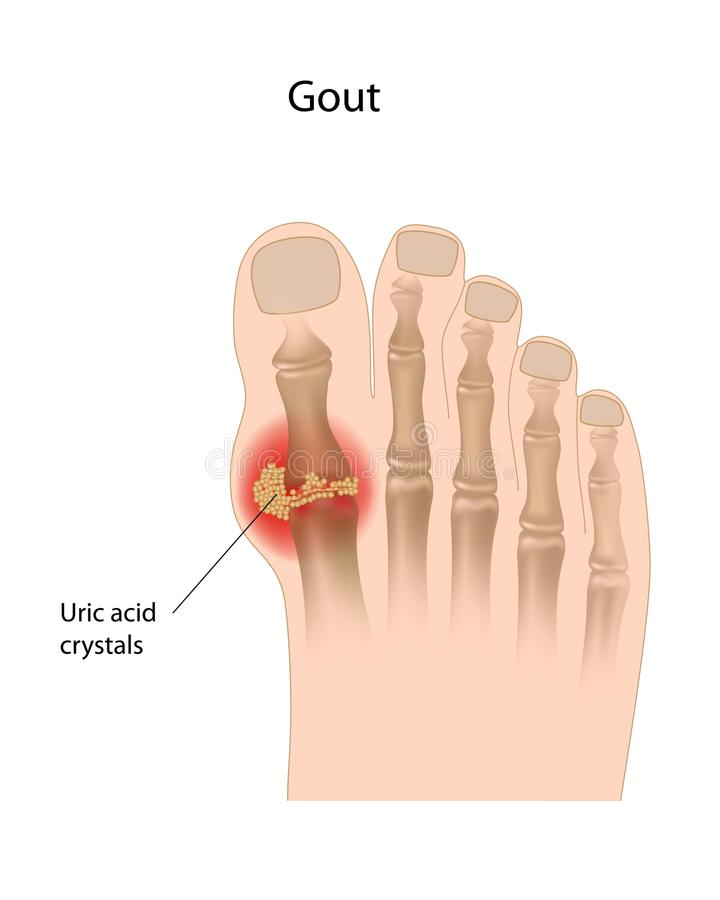 Gout of the big toe. Inflammatory arthritis of the joint caused by urate crystals, eps10 royalty free illustration