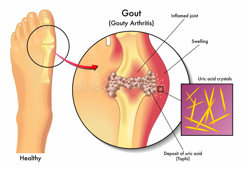 Gout. Medical illustration of the symptoms of gout