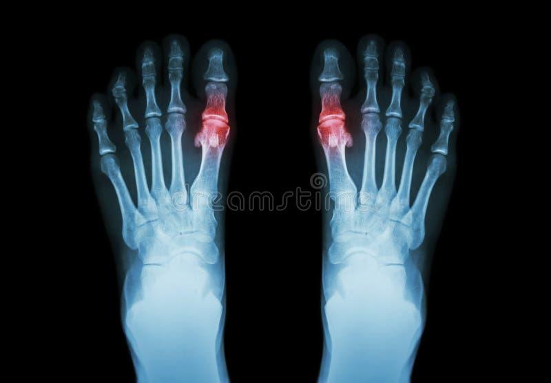 Gout, Rheumatoid αρθρίτιδα (πόδι ακτίνας X ταινιών και και metatarsophalangeal ένωση αρθρίτιδας καταρχάς) (ιατρική και επιστήμη b στοκ φωτογραφία με δικαίωμα ελεύθερης χρήσης