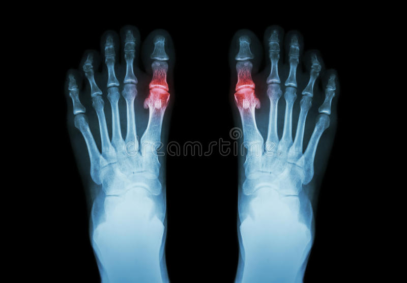 Gout , Rheumatoid arthritis ( Film x-ray both foot and arthritis at first metatarsophalangeal joint ) ( Medicine and Science. Background royalty free stock photography