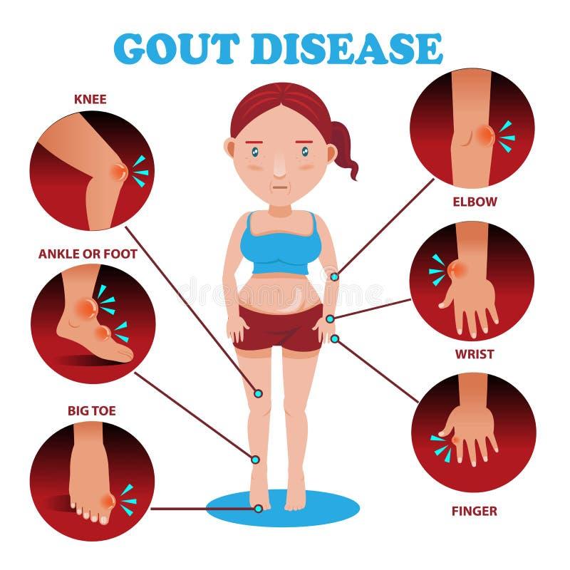 Gout symptoms vector illustration