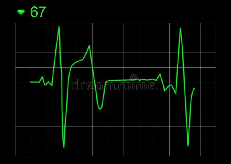 Gráfico de ECG ilustração stock