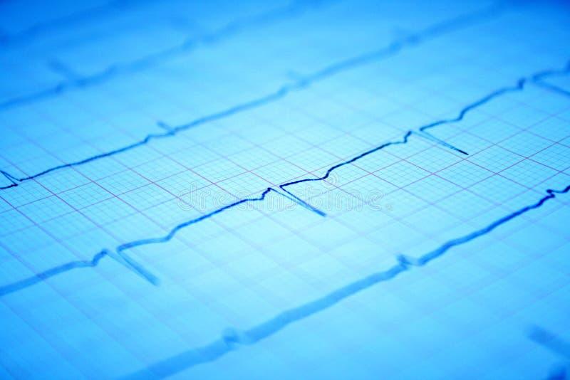 Gráfico del corazón ECG en el papel imágenes de archivo libres de regalías