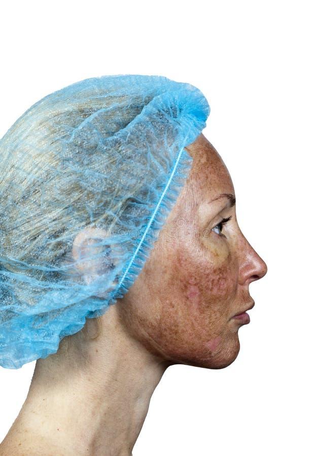 Gräns mellan den behandlade och sunda huden på en hals cosmetology Flå i kursen av kasseringen efter en djup kemisk peelin royaltyfri fotografi