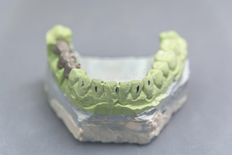 Grünes zahnmedizinisches Zahnimplantats-Gipsmuster mit Metallbrücke auf Tabelle lizenzfreie stockfotos