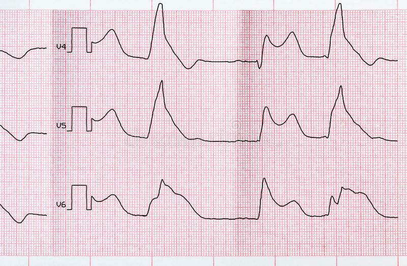 Grabe ECG con el infarto del miocardio macrofocal y b ventricular imagen de archivo