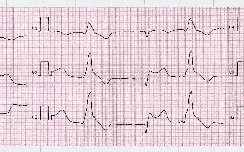 Grabe ECG con el infarto del miocardio macrofocal y p ventricular imágenes de archivo libres de regalías