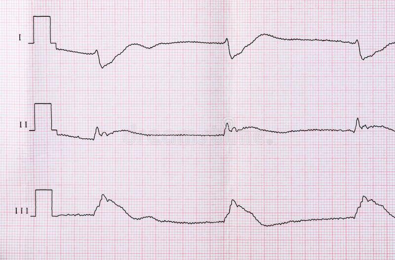 Grabe ECG después de muerte clínica y de la resucitación acertada imagen de archivo